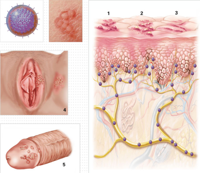 Male Genital Ulcer Causes And Testing 創健情性健康專家 Sexual Health Specialists